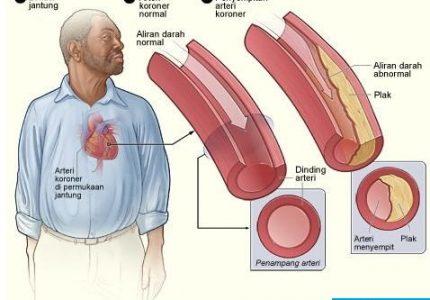 Penyakit Arteri Koroner, Penyebab, Gejala dan Perawatannya
