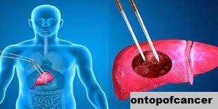 Metode Pengobatan Kanker Hati